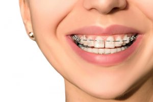 5 Myths About Orthodontic Treatments