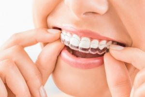 6 Tips To Get The Most From An Invisalign Treatment