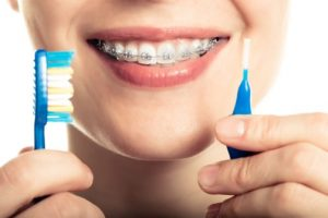 6 Ways to Keep Teeth Clean with Braces